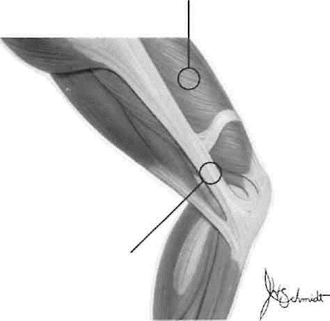 Iliotibial-Band Friction Syndrom